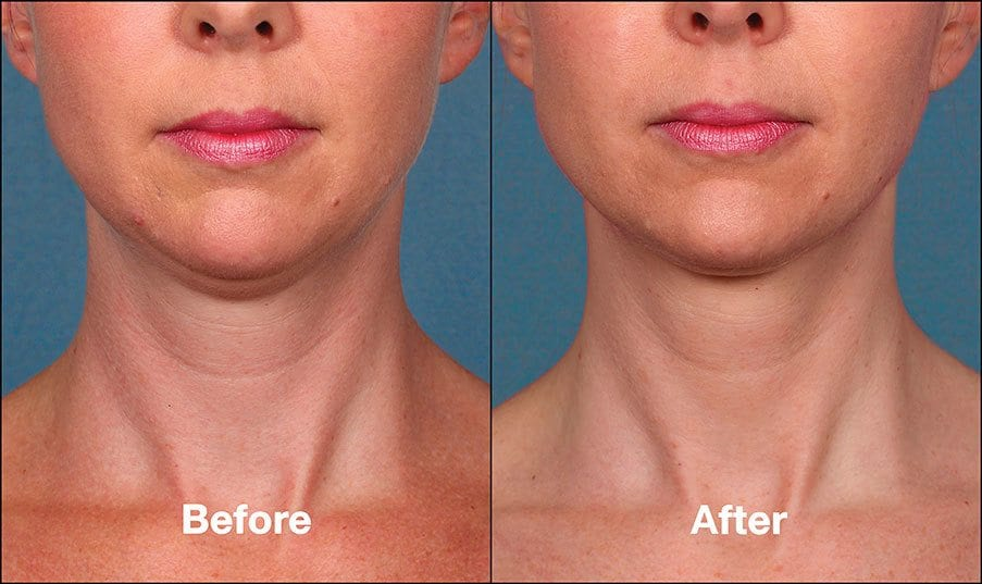 Kybella Orange County Patient 4