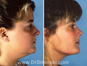 Liposuction Orange County Patient 2