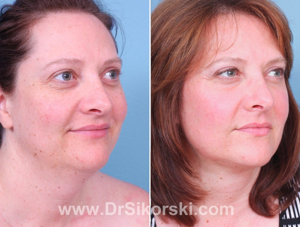 Neck Lift Mission Viejo Patient 1