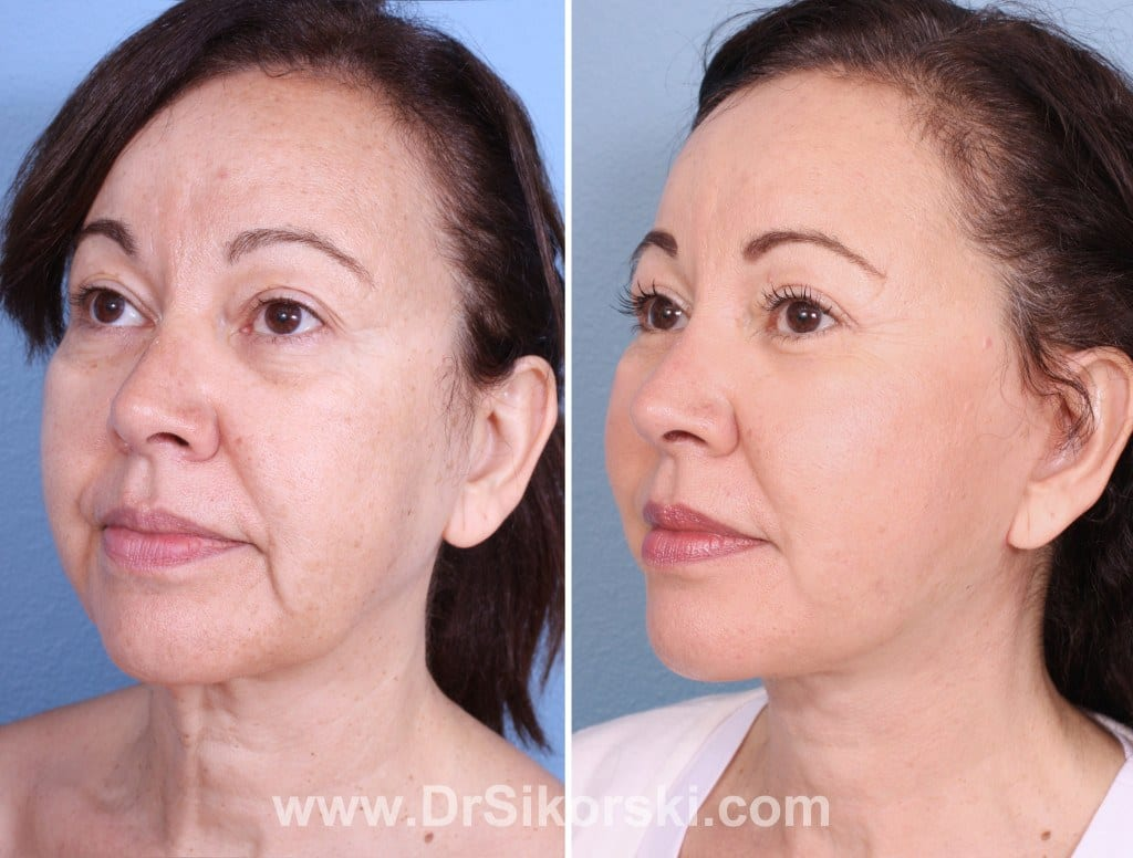 Neck Lift Mission Viejo Patient 3