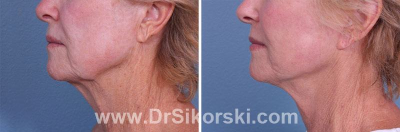 Neck Lift Orange County Patient 3