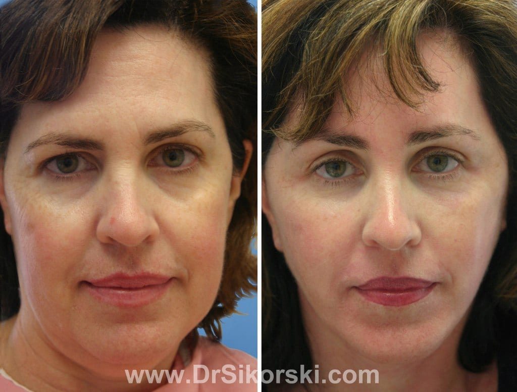 Neck Lift Orange County Patient 4