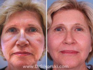 Photo Dynamic Therapy Orange County Patient 1
