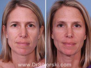 Restylane Lyft Orange County Patient 1