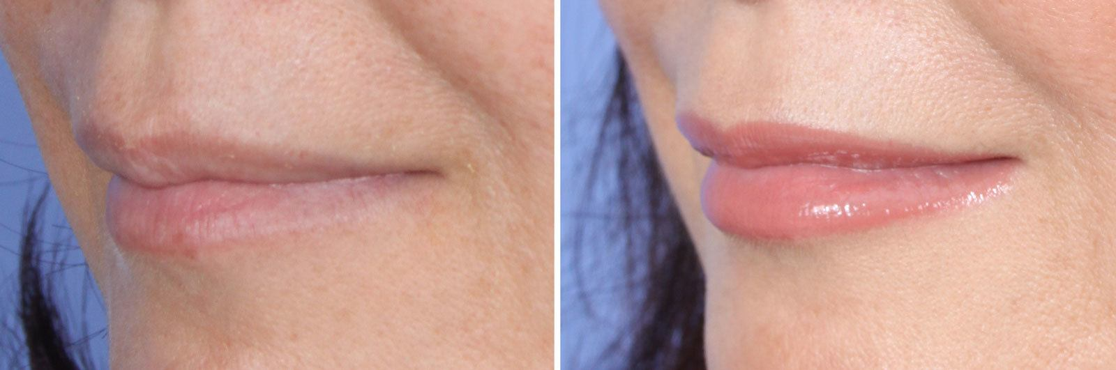Restylane Mission Viejo Before and After Patient F1