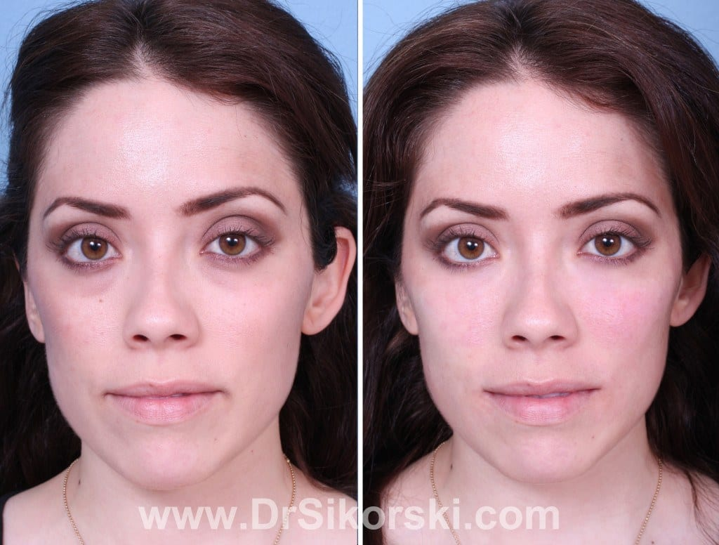 Restylane Orange County Patient 1