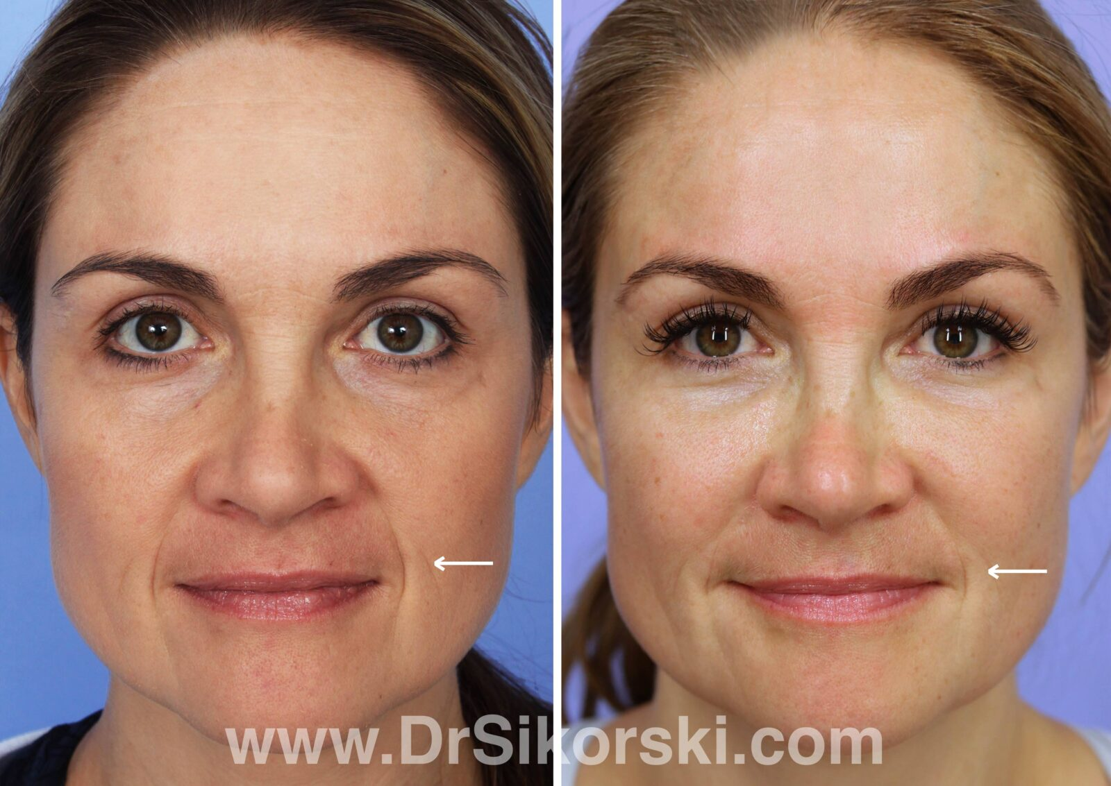 BOTOX® Before and After Patient J