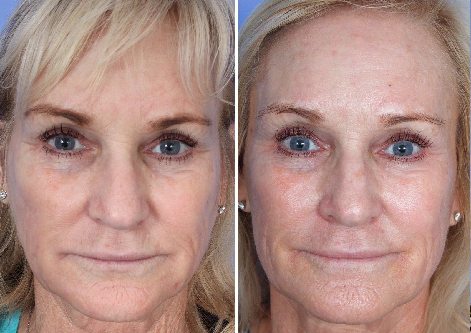 Sculptra Mission Viejo Patient 2