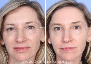 Sculptra Mission Viejo Patient 3