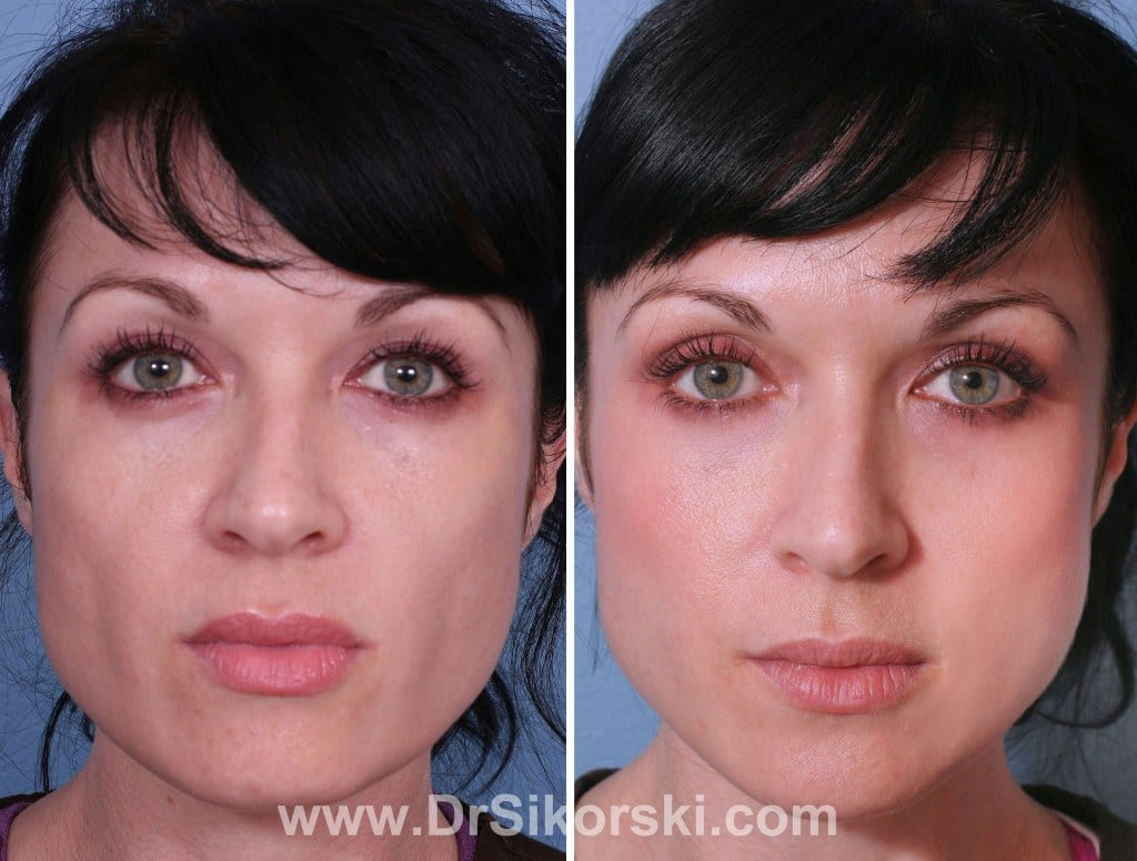 Sculptra Mission Viejo Patient 1