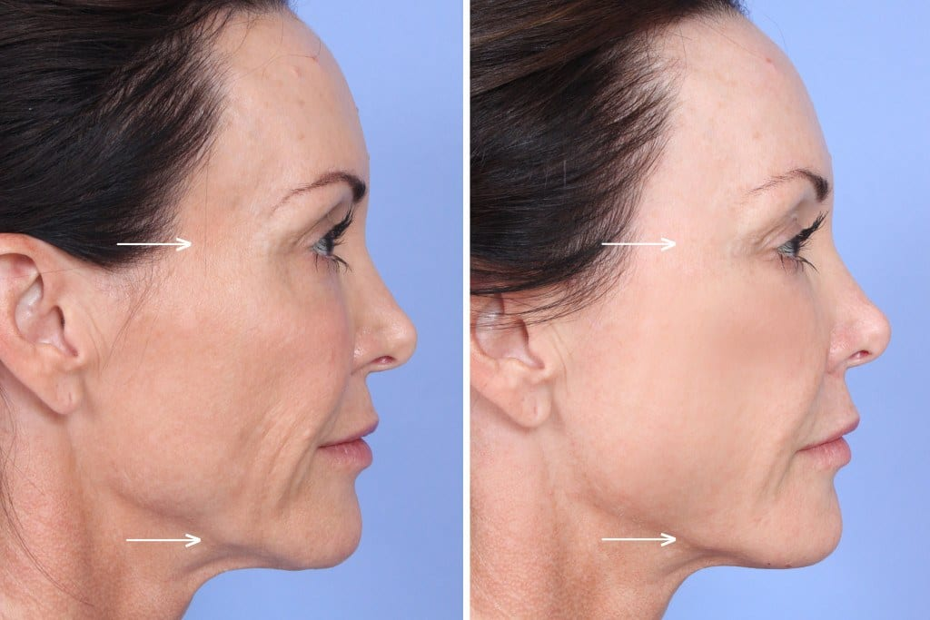 Sculptra Orange County Before and After Patient A