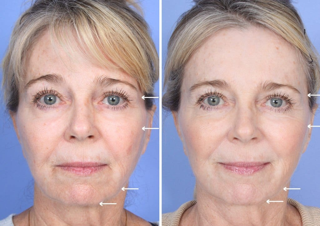Sculptra Orange County Patient 2
