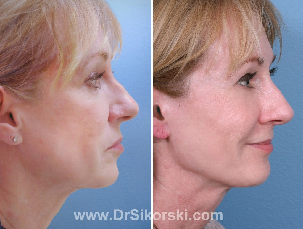 Sculptra Orange County Patient 3