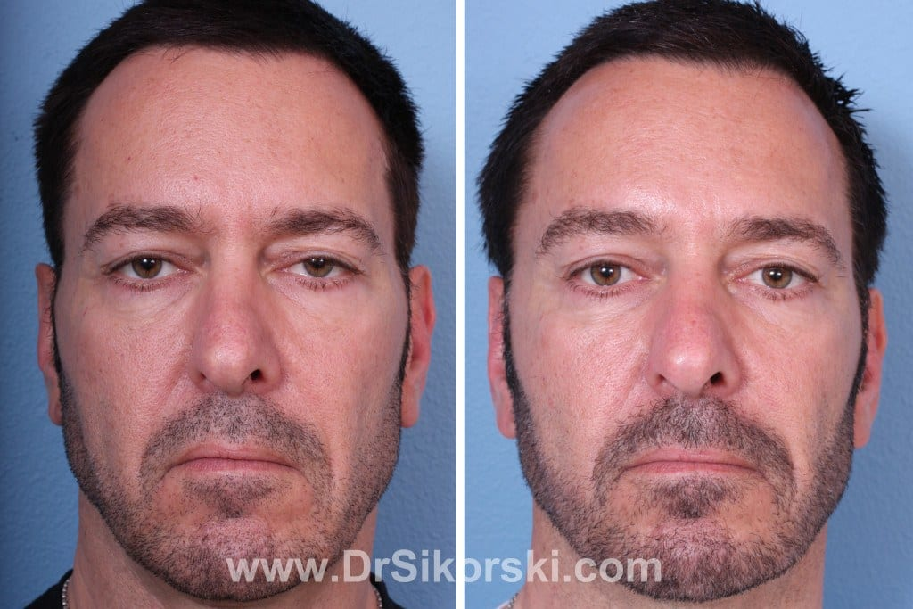 Sculptra Orange County Patient 4