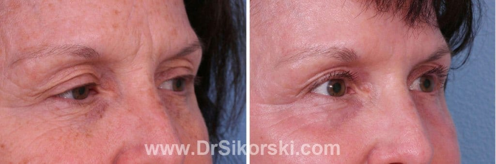 Silikon Mission Viejo Before and After Patient E1