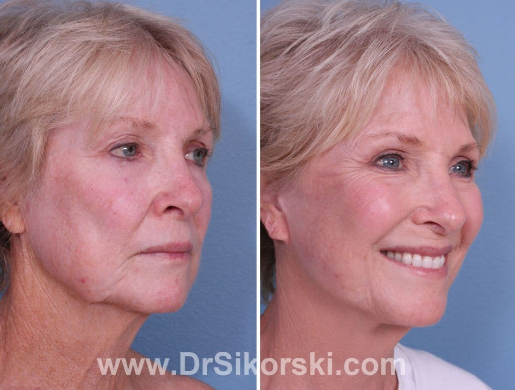 Silikon Mission Viejo Before and After Patient F1