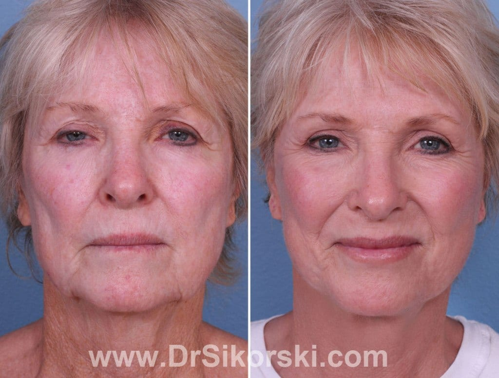 Silikon Mission Viejo Before and After Patient F