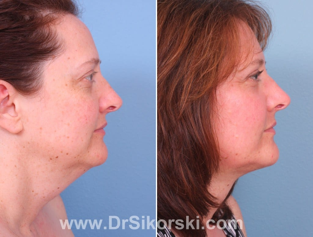 Thermage Mission Viejo Before and After Patient J1