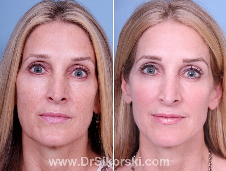 Thermage Orange County Before and After Patient A