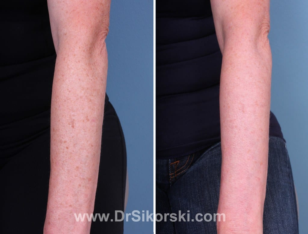 Thulium Laser Mission Viejo Before and After Patient C