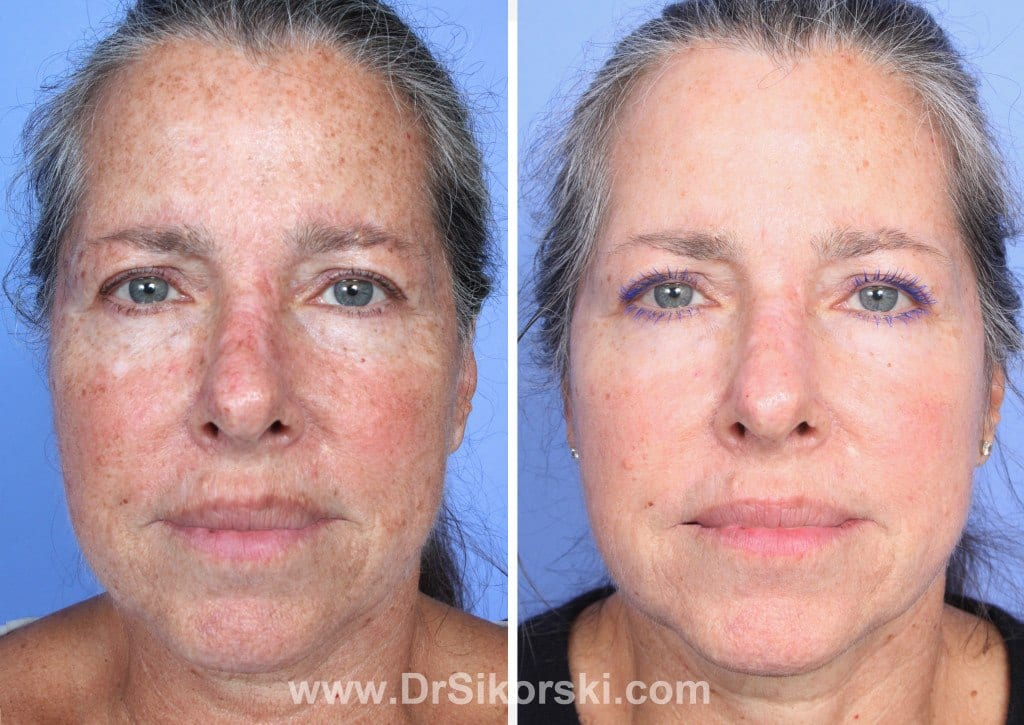 Thulium Laser Mission Viejo Before and After Patient D1