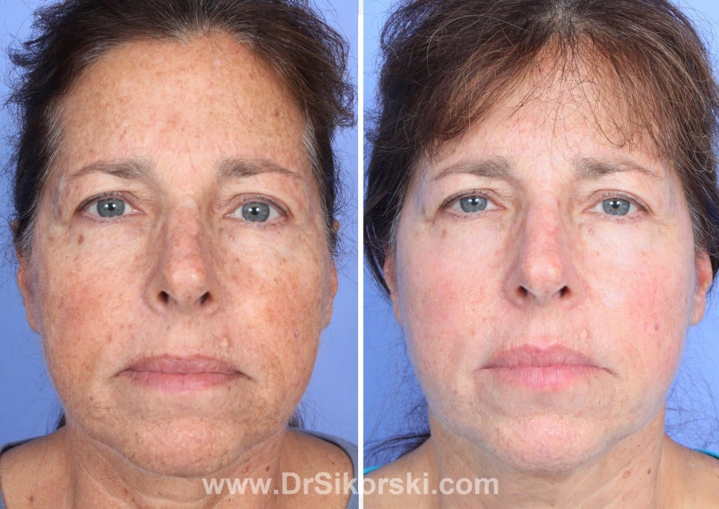 Thulium Laser Mission Viejo Before and After Patient D