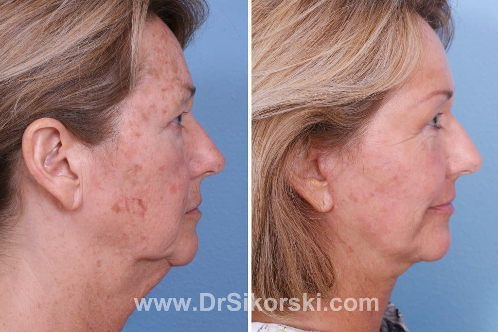 Thulium Laser Orange County Patient 2