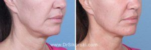 Ultherapy Mission Viejo Patient 2