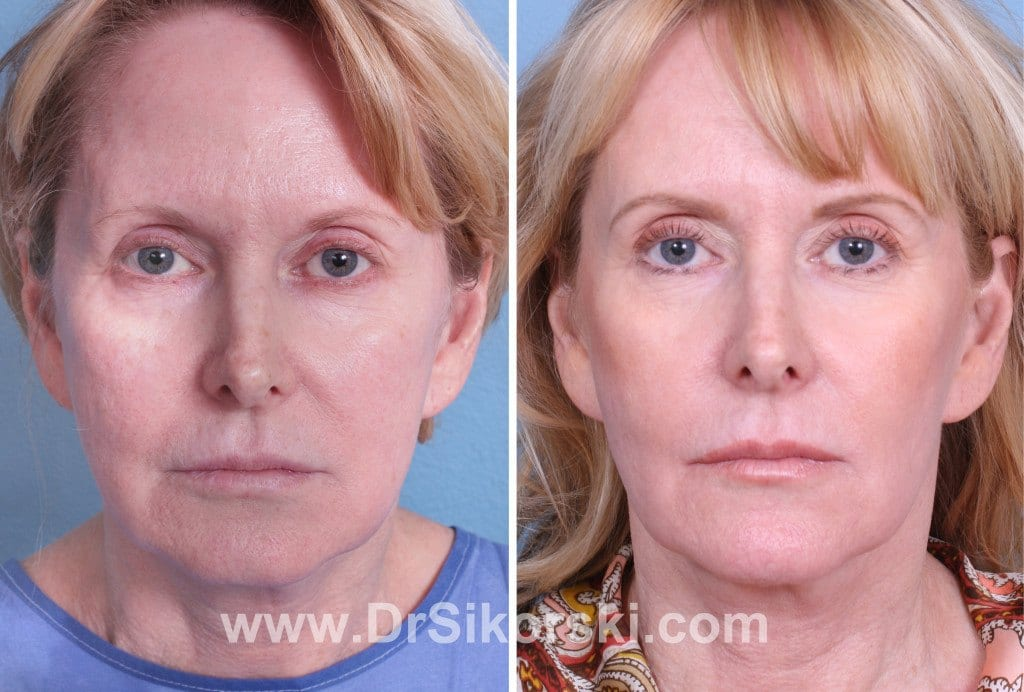 Ultherapy Mission Viejo Patient 3