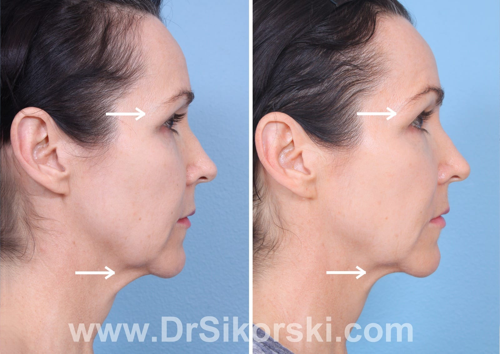 Ultherapy Orange County Patient 2