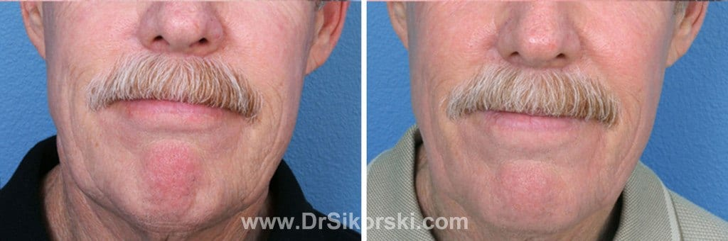 VBeam Mission Viejo Before and After Patient E