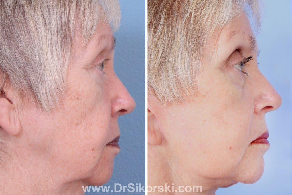VBeam Mission Viejo Before and After Patient H
