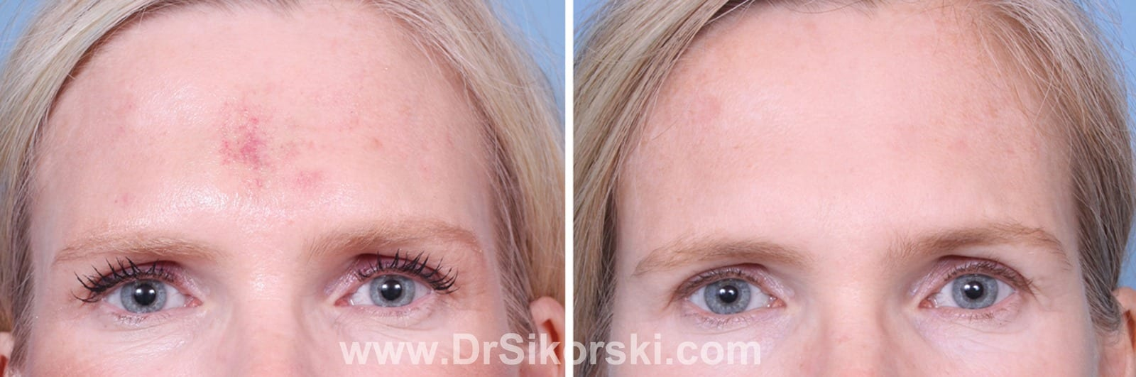 VBeam Mission Viejo Before and After Patient I