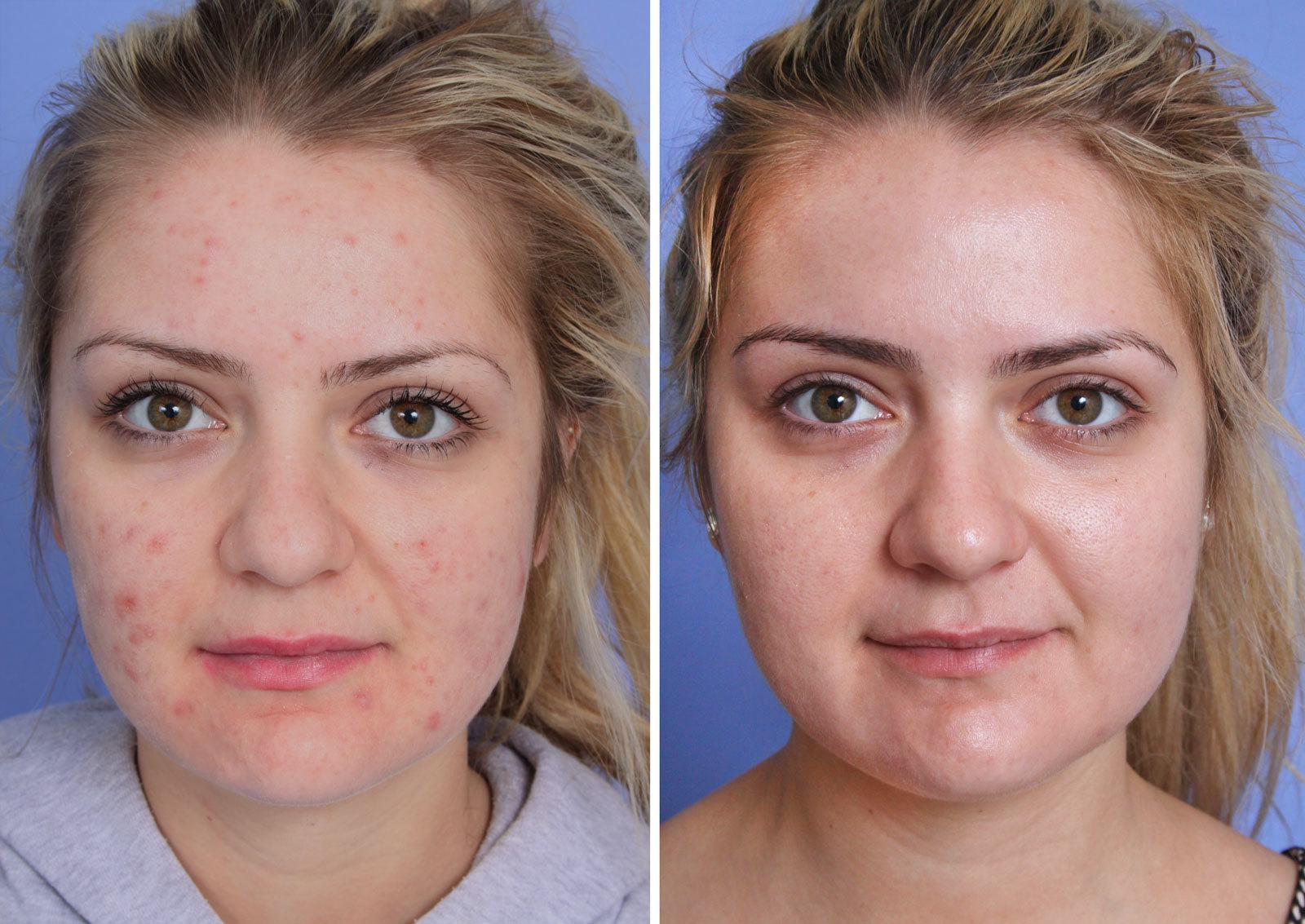 VBeam Orange County Before and After Patient A