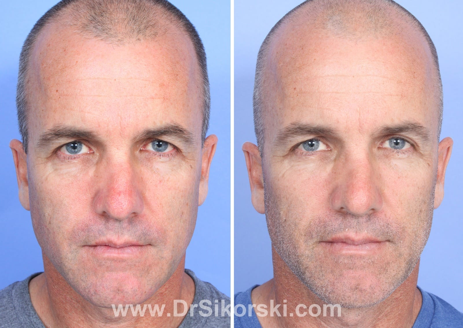 VBeam Orange County Before and After Patient C