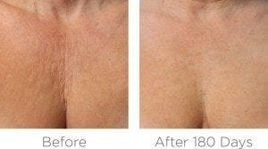 blog-decolletage-before-after-300x167