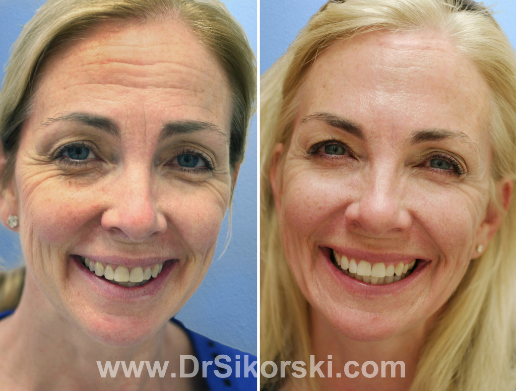 how to get rid of frown lines on forehead naturally