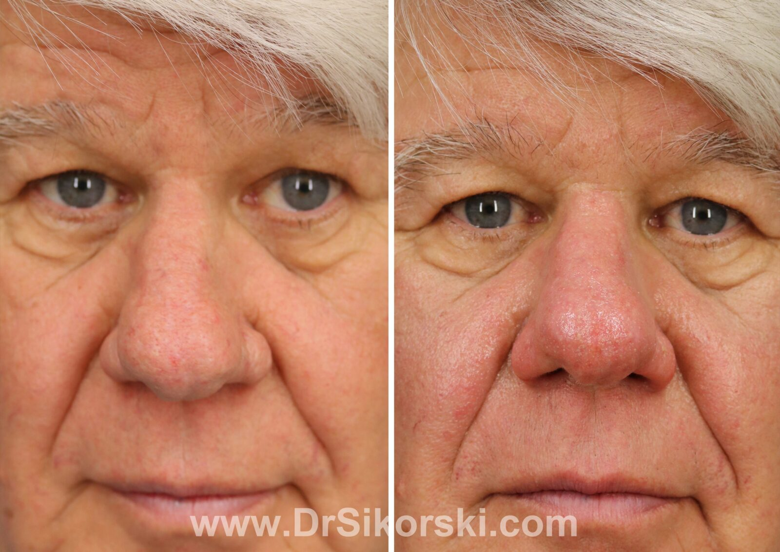 Fractionated co2 rhinophyma before and after male patient front view