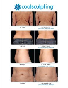 coolsculpting_before_and_after_female-232x300