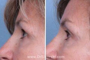 Thermage Mission Viejo Before and After Patient I 1
