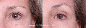 Thermage Mission Viejo Before and After Patient H