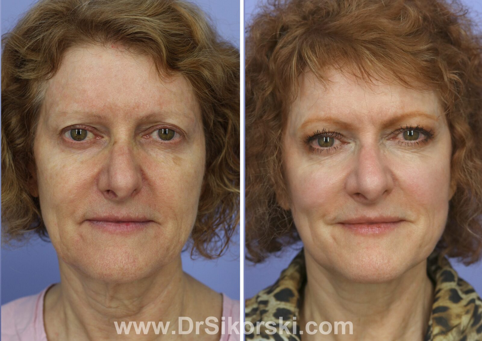 Facelift Thulium Before and After of Red Head Female Patient H Front View