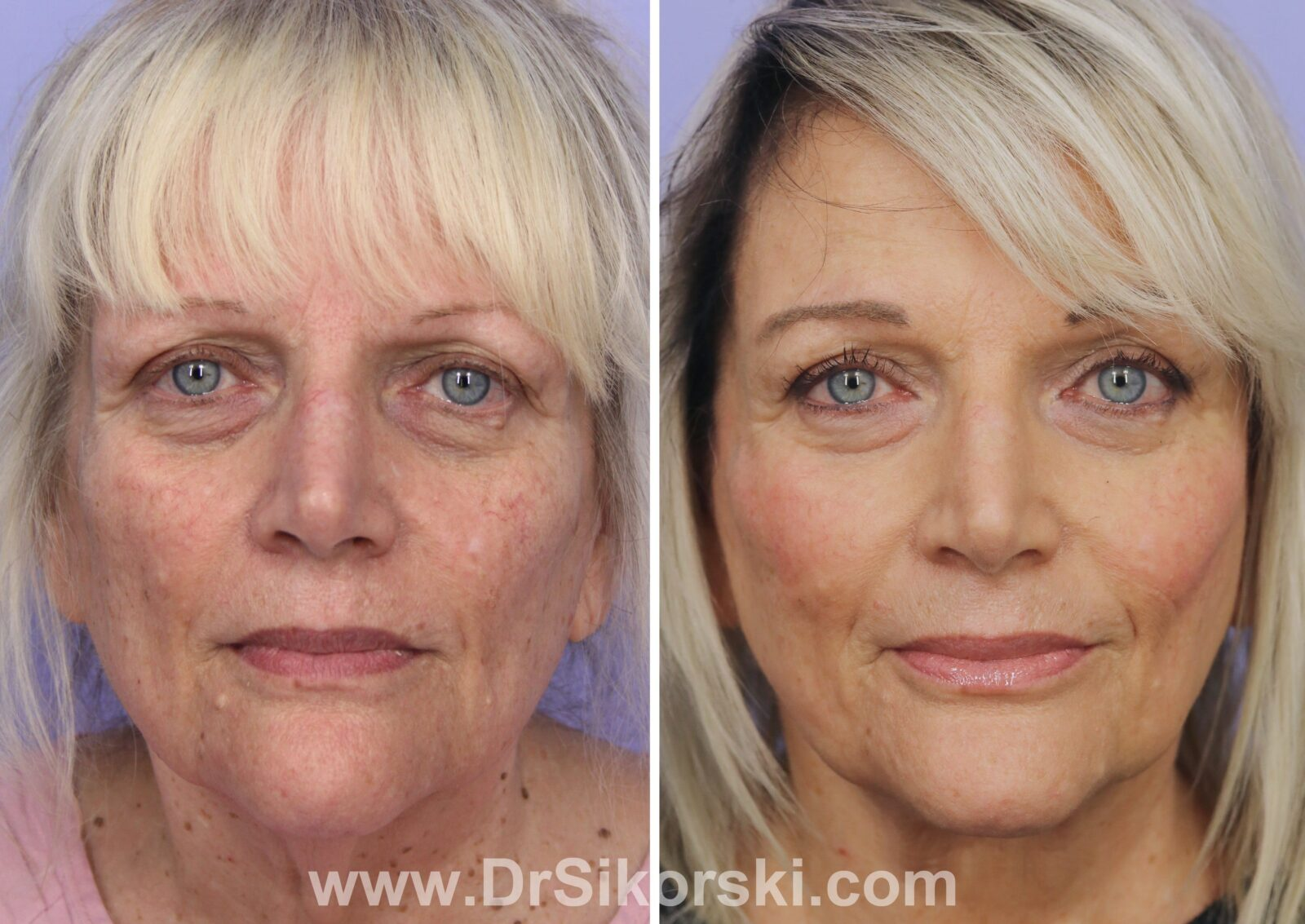 Facelift Before and After Blond Female Patient G