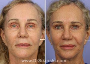 juvederm restylane and perlane before and after photos Mission Viejo and Orange County