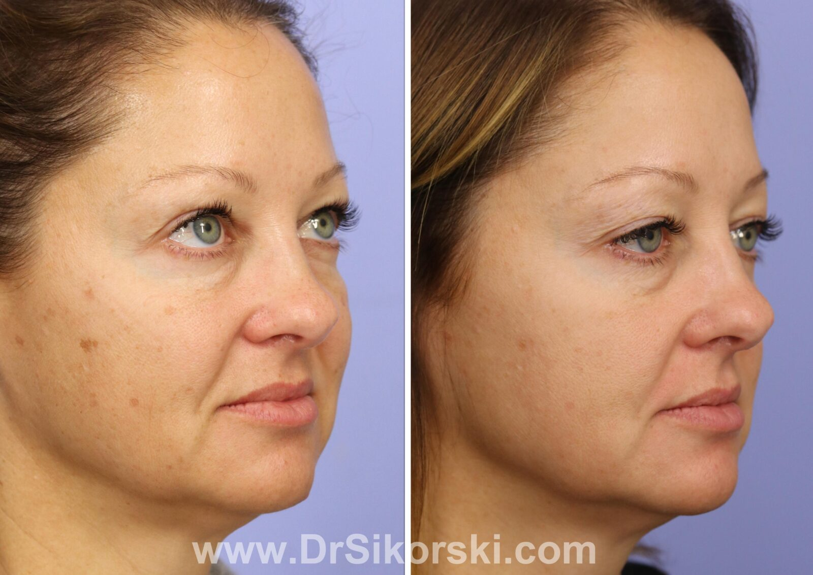 Photoderm Before and After Patient B