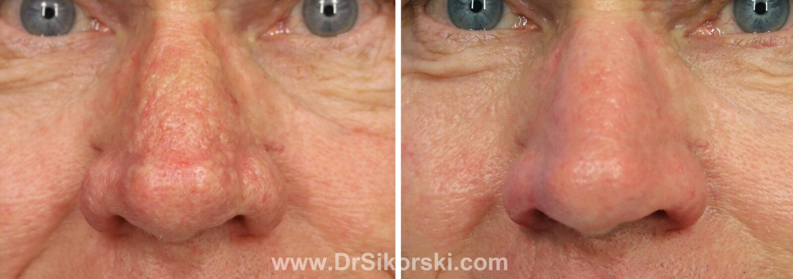 Rhinophyma Before and After Patient B