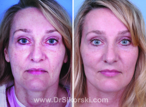 Active lift, facelift, face lift, Natural Image OC, orange county active lift, orange county face lift, laguna niguel face lift