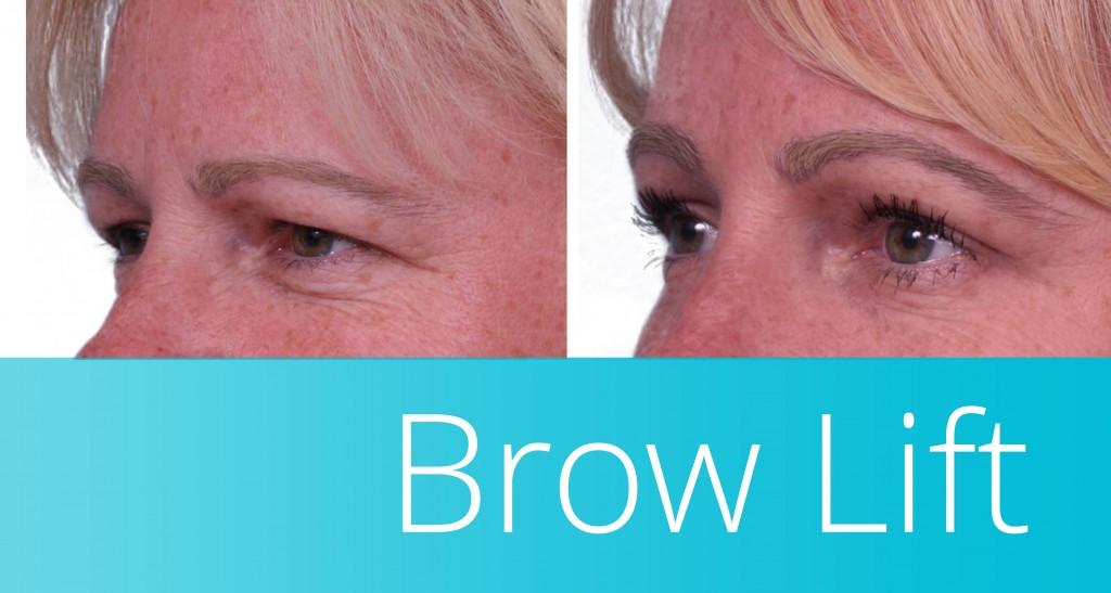 brow lift in orange county