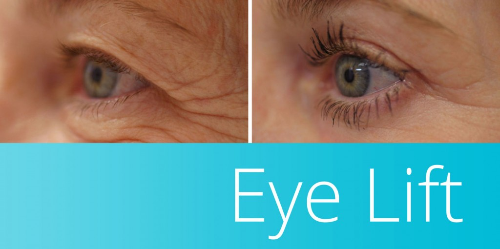 Eye Lift in Orange County