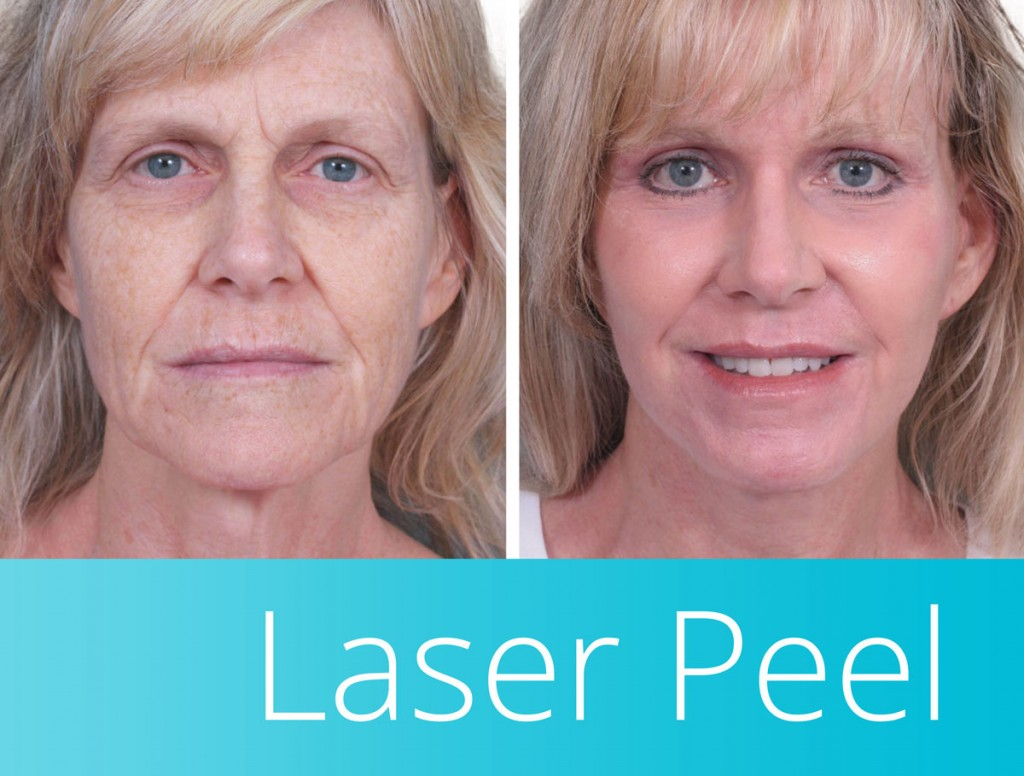 laser peel in orange county